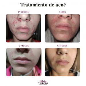 tratamiento-acne-resultados